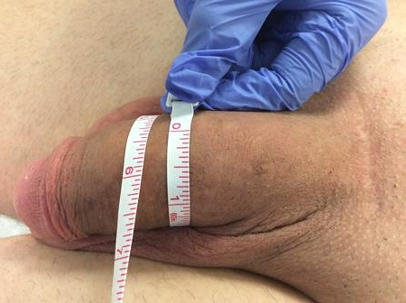 Penis enlargement surgery los angeles